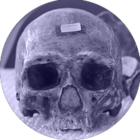 A skull in the department's collection.