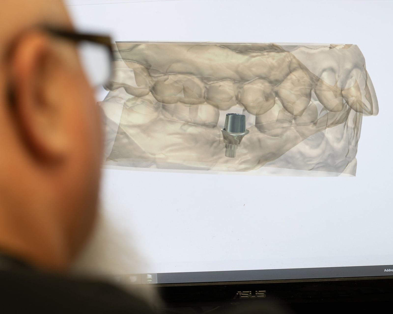 Dentist looking at 3D model of teeth on a screen.