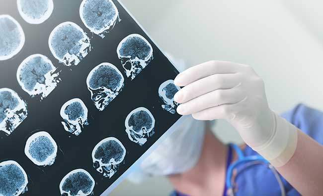 doctor holding brain scan results