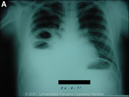 Image A for Case 2001-01