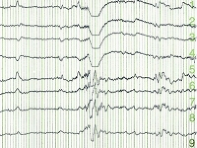 Study finds EEG biomarker to predict seizure onset in tuberous sclerosis patients