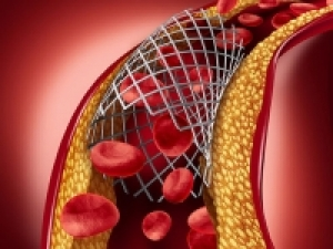 Simple genetic test shows promise for better outcomes in heart stent patients