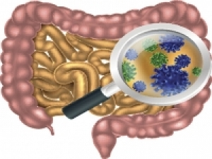 UAB study shows link between microbiome in the gut and Parkinson's
