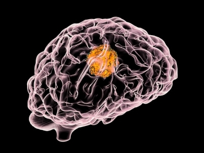 Enzyme inhibitor combined with chemotherapy delays glioblastoma growth