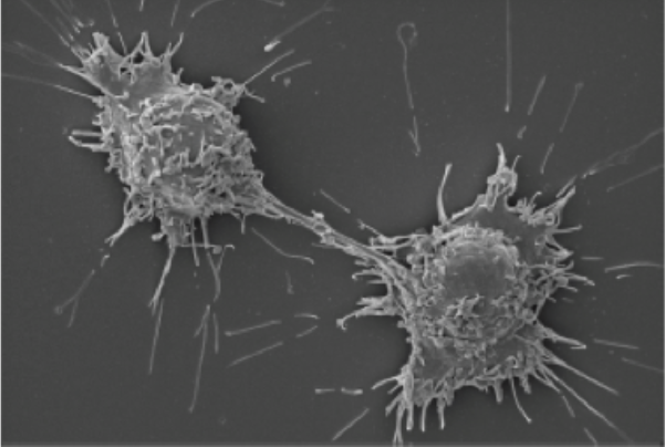 Pictured: Scanning electron micrograph of rare human pheochromocytoma tumor cells.