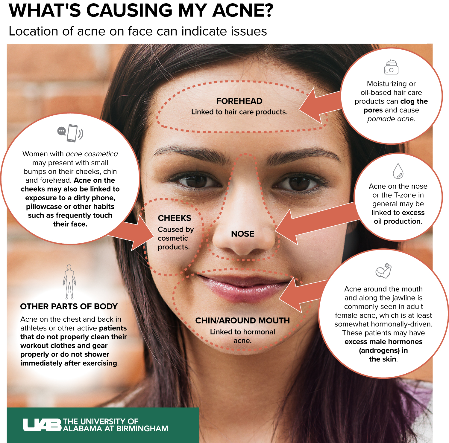 What Is Causing My Acne News Uab