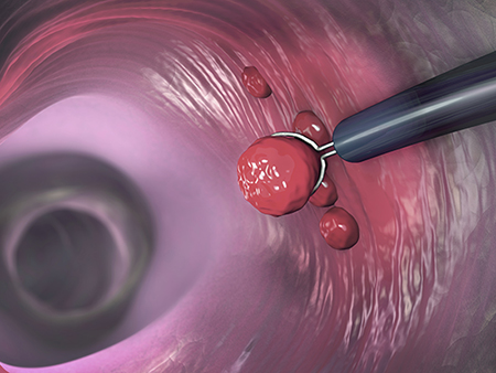Polyp removal, illustration. Removal of a colonic polyp with an electrical wire loop during a colonoscopy.