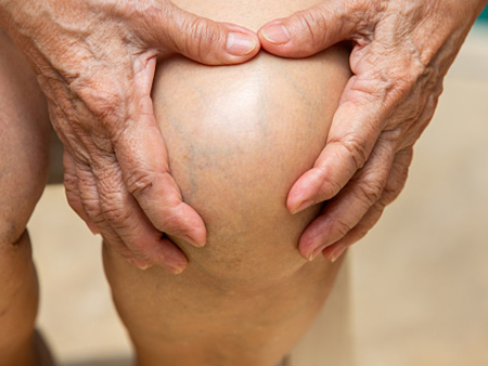 Study Low Carb Diet Provides Relief From Knee Osteoarthritis News Uab