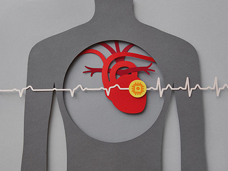 Paper craft illustration of human chest with heart and pacemaker.