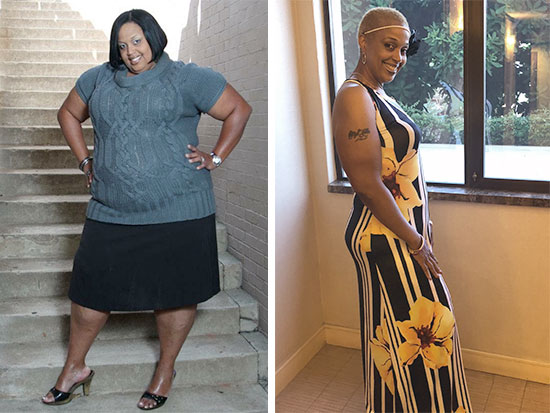 Uab News Bariatric Surgery Is Effective Under The Right