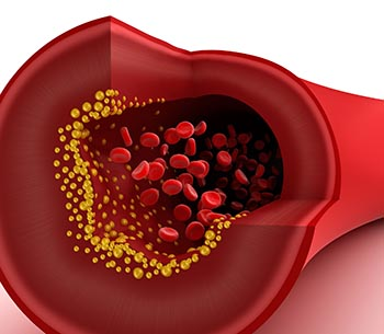 cholesterol_in_blood_vessel_s