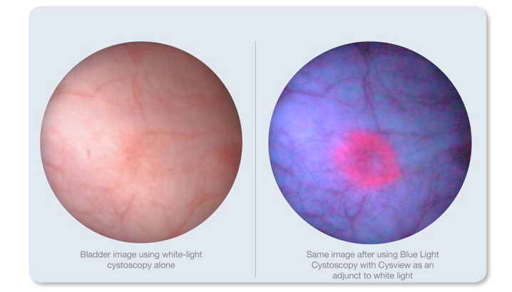 cystoscopy web