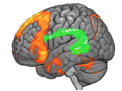 Chiropratic Functional MRI Post Adjustment