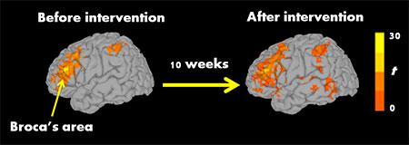 kana brain small