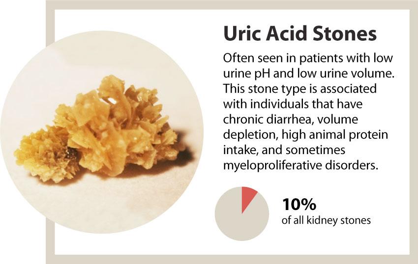 kidney stones uric