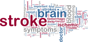 stroke_brain_site