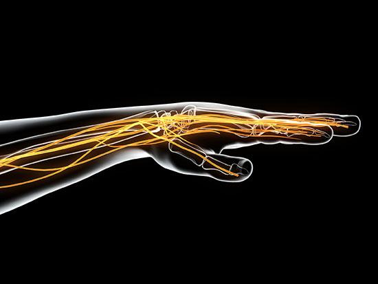nerve disease