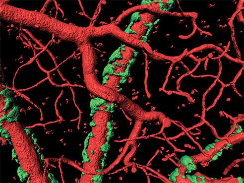 vascular slime