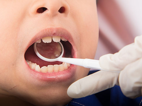 young dental patients ts
