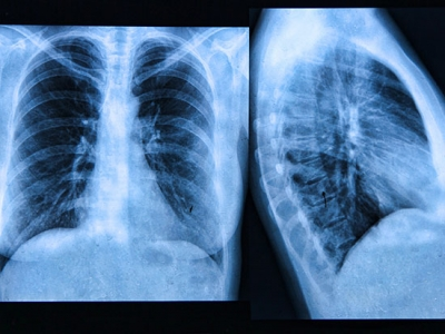 Metformin reverses established lung fibrosis