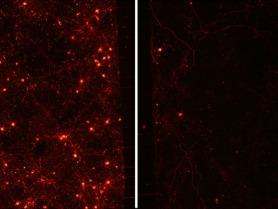 Study identifies chaperone protein implicated in Parkinson's disease