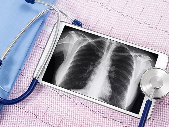 Telehealth pulmonary rehabilitation reduces 30-day readmissions