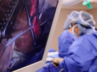 New study questions timing in mitral valve repairs