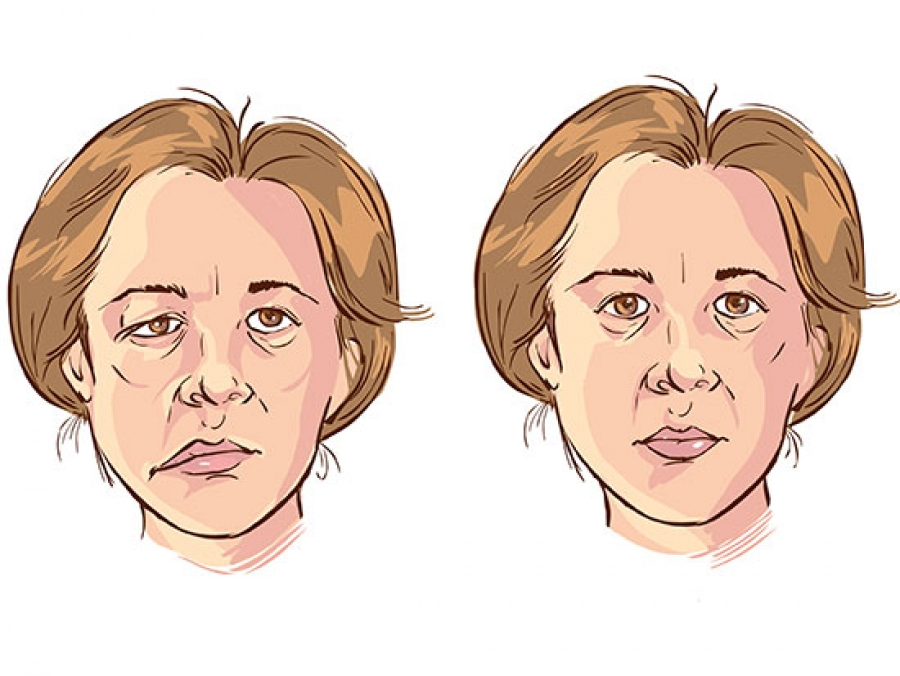 How to Diagnose Bells Palsy