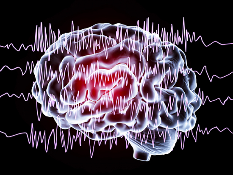 Extra benefit from epilepsy neurostimulators — reducing comorbid neuropsychiatric symptoms