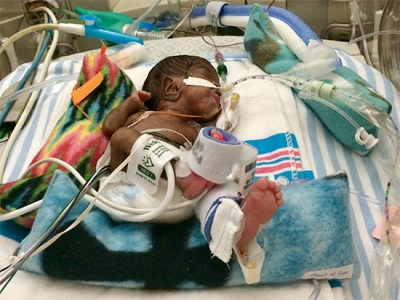 How one mother and her 152-day NICU warrior navigated their prematurity journey