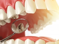 Small molecule inhibitor prevents or impedes tooth cavities in a preclinical model