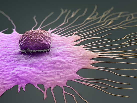 Expansion stress enhances growth and migration of breast cancer cells