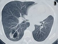 UAB offers CT scan for early detection of lung cancer