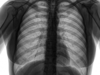 Long-term oxygen treatment does not benefit some COPD patients