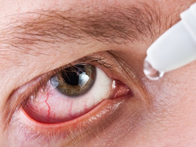 Dry eye relief progresses with new guidelines and expansion of UAB's Dry Eye Relief Clinic