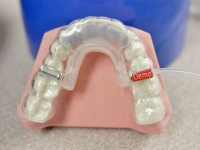 New braces clinical trial sheds metal brackets