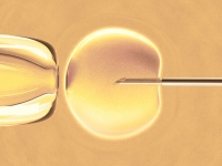 IVF education session to be held April 22