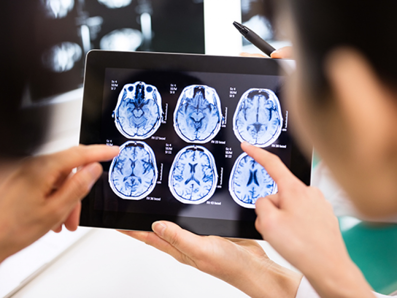 Genes may predict cancer patients at highest risk of chemo brain after BMT