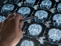 Early study: feeling hungry may protect the brain against Alzheimer's disease