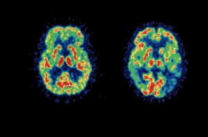 Protein interaction might disrupt neural network in Alzheimer's