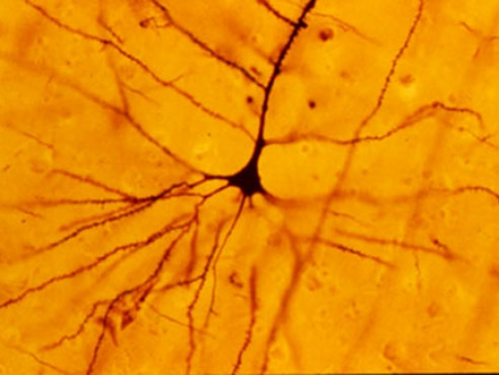 Discovery of mechanism that alters neural excitability offers window into neuropsychiatric disease
