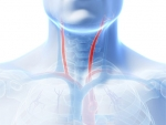 Stroke risk increases from stenting in older patients