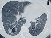UAB is leader in using newly recommended CT scans for lung cancer detection