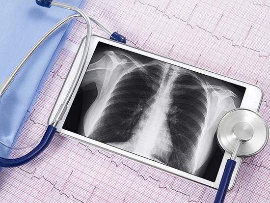 Pilot telemedicine program to serve lung nodule patients in Bibb County