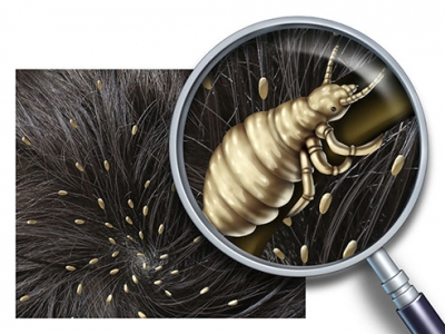 Don't let head lice get the best of your family this school year