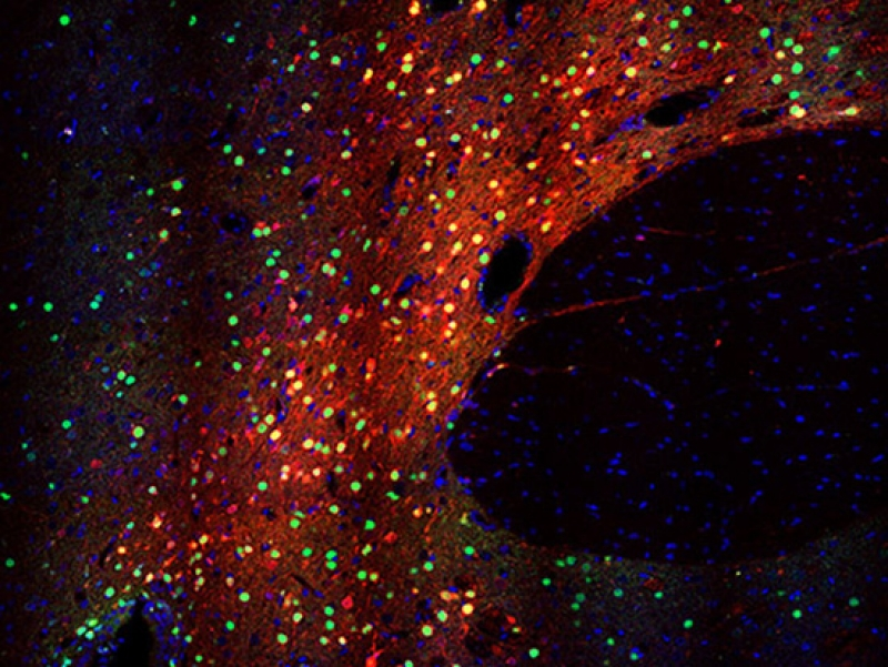 Robust and specific gene regulation tool developed for primary brain neurons