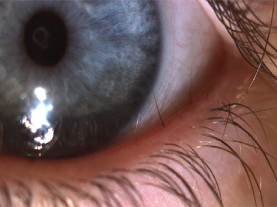 Uab News Ten Year Old Finds Relief From Rare Eyelash Growth
