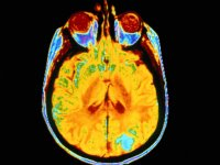 Researchers discover gene deletion associated with brain cancer
