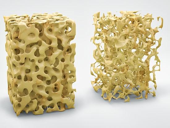 Researchers describe mechanism that underlies age-associated bone loss