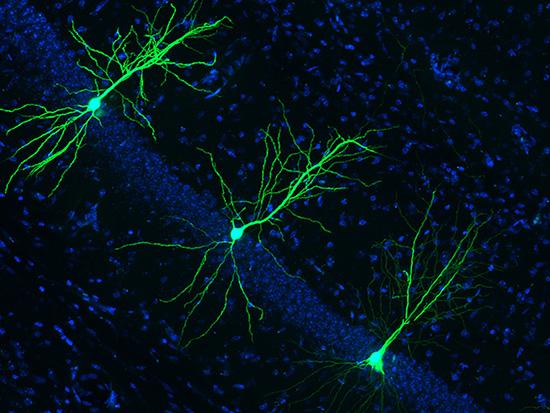 New target for drug intervention in Alzheimer's disease identified
